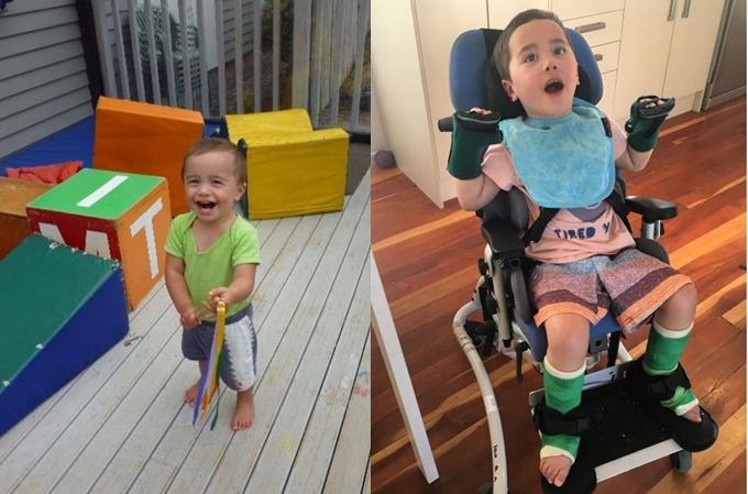 Menino engasga com maçã e fica paraplégico (Foto: Reprodução/ Child forum)